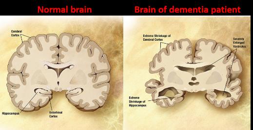 dementia'