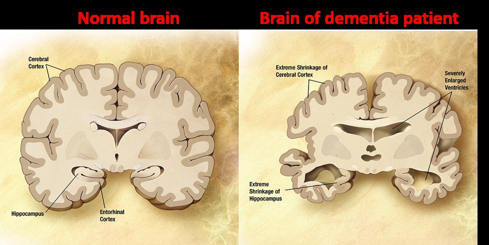 Normal Brain   Brain of Dementia Patient